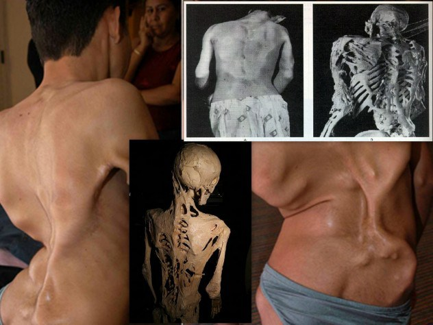 10 Strange And Bizarre Medical Conditions That You May Think Are Not Real